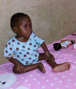 بالصور: هذا الطفل تخلى عنه والديه لاعتقادهم انه شيطان لن تصدق كيف اصبح الان!